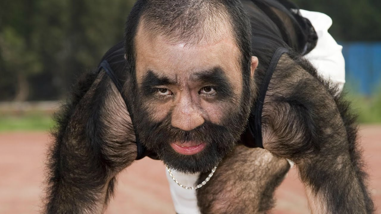 Yu Zhenhuan held the weird world record of the hairiest man in the world