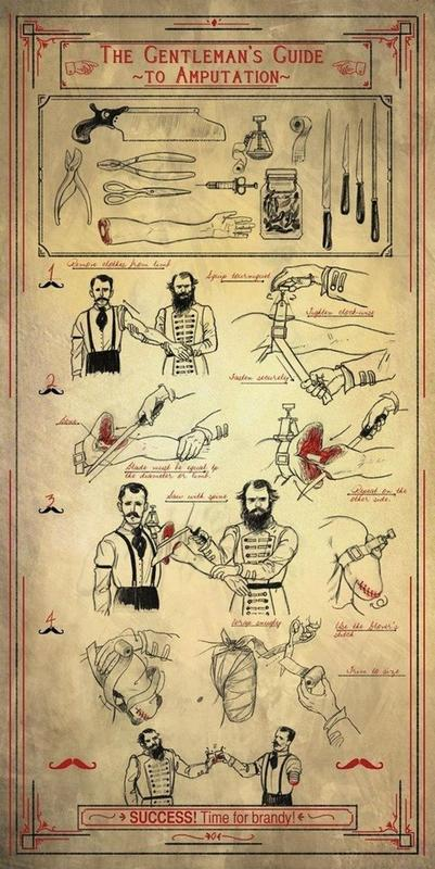 amputation guide ancient medicine