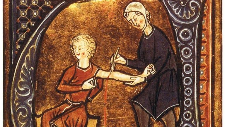 bloodletting ancient medicine practices