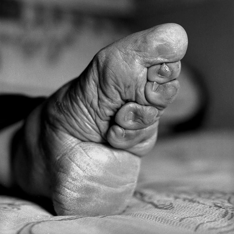foot bending medical images