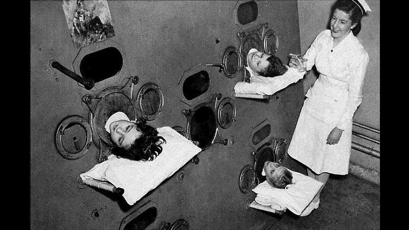iron lung horrific medical practices past