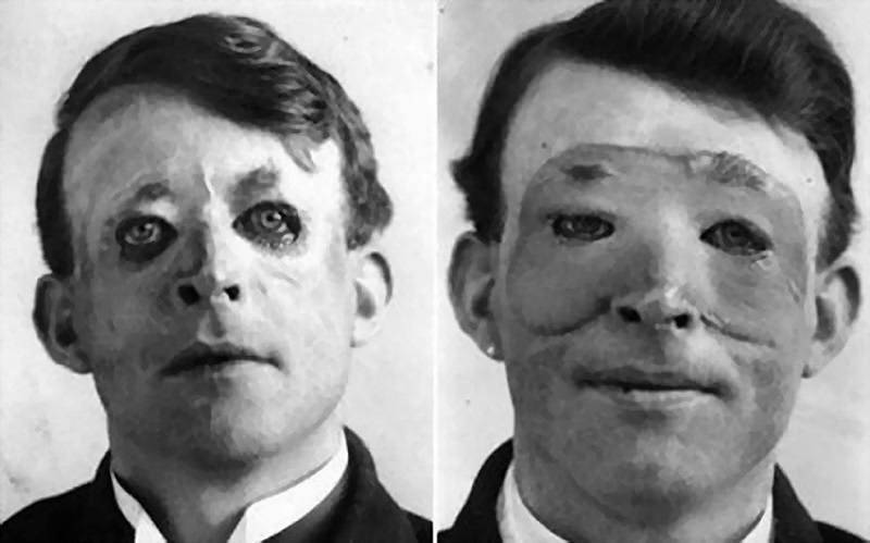 plastic surgery early medicine practices