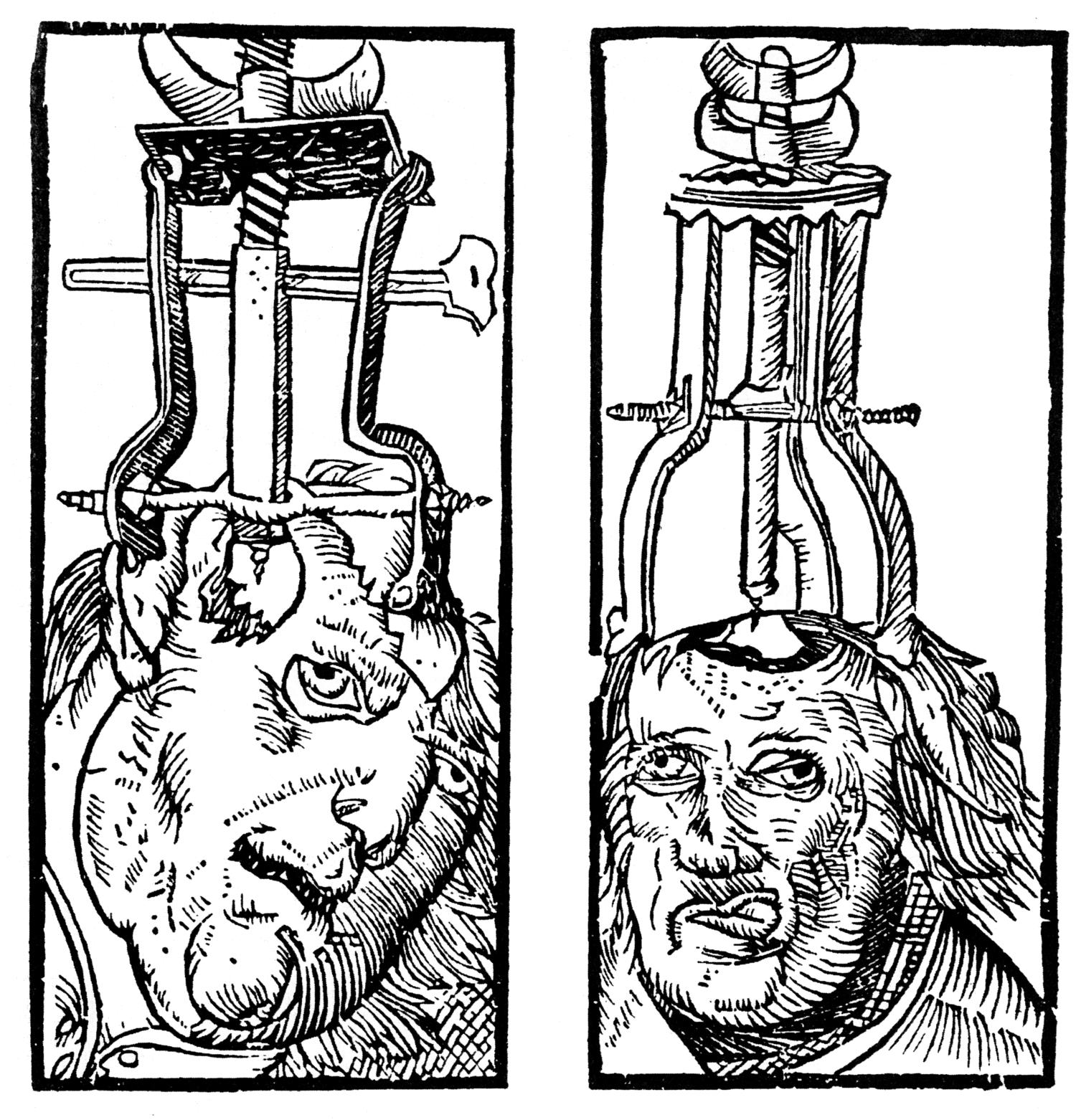 trepanation engraving ancient medical practice
