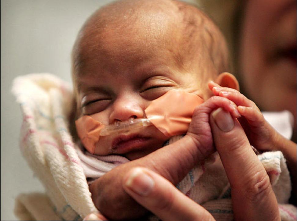 worlds tiniest baby