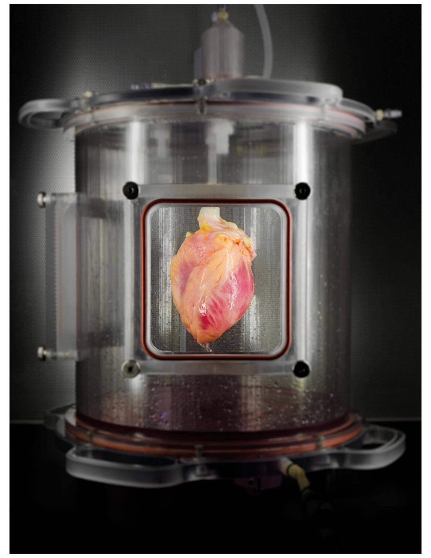 Reproducing human organs
