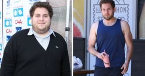 Jonah Hill is another client of Dr. Goglia
