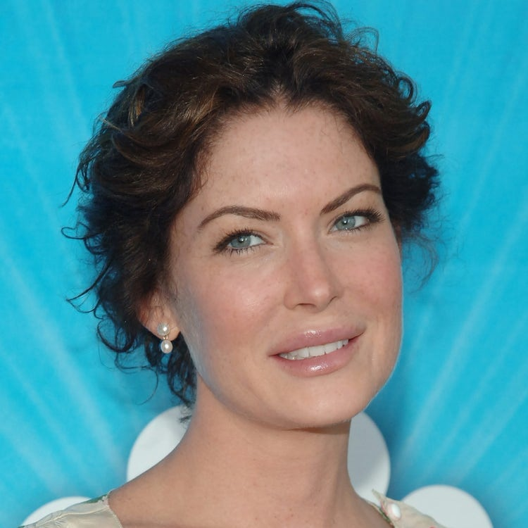 Lara Flynn Boyle after surgery | unrecognizable famous people
