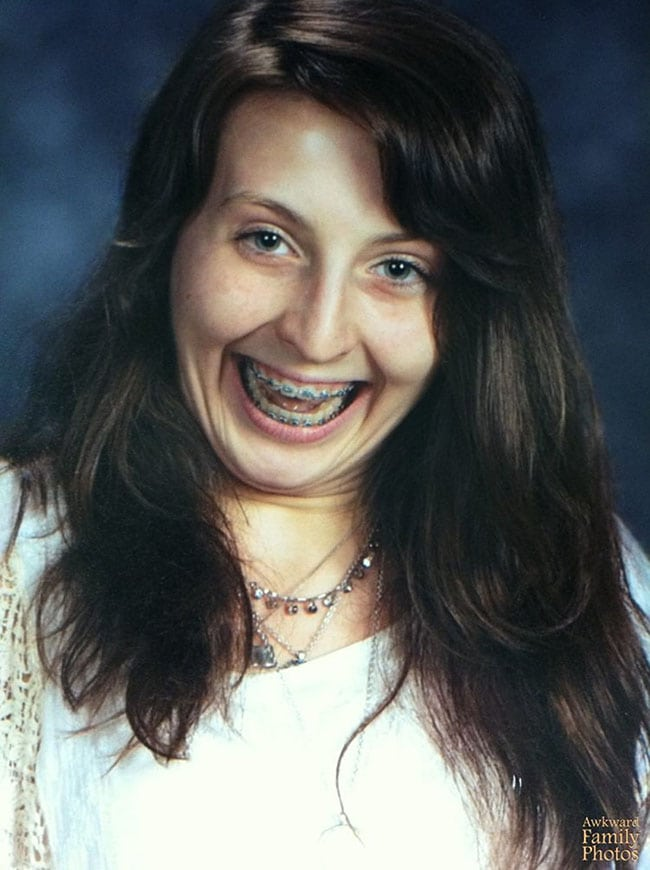 awkward school photos | huge smile with braces