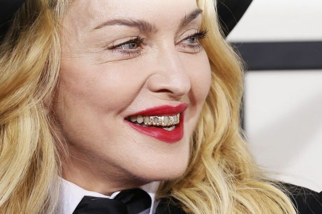 Madonna with gold grill | celebs with the worst teeth