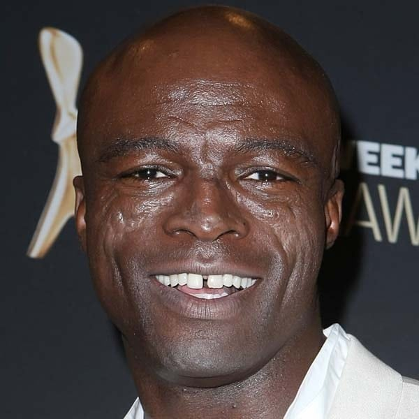 Seal is one of the celebs with the worst teeth