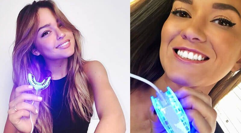 Mobile White is perfect for getting White Teeth With Your Phone